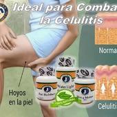 La celulitis es un depósito de grasa debajo de la piel, en los muslos, las caderas, las nalgas y el vientre,para lograrcombatirla demanera rápida, cuenta con #FatRobbers, #SlimaMotion y#WaterLight  #YoSoyNfn #NaturalForcesNutriproducts #Sobrepeso #NFNColombia#NFNVenezuela#NFNMiami#NFNPanama