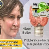 Unnódulo tiroideo es una protuberancia sólida o llena de líquido,para lograr controlar y revertir de manera rápida, cuenta con#TyrosineForces, #DHEAy#Turmerica  #YoSoyNfn #NaturalForcesNutriproducts#NodulosTiroideos  #NFNPanama 🇵🇦 #NFNMiami 🇺🇸 #NFNVenezuela 🇻🇪 #NFNColombia 🇨🇴